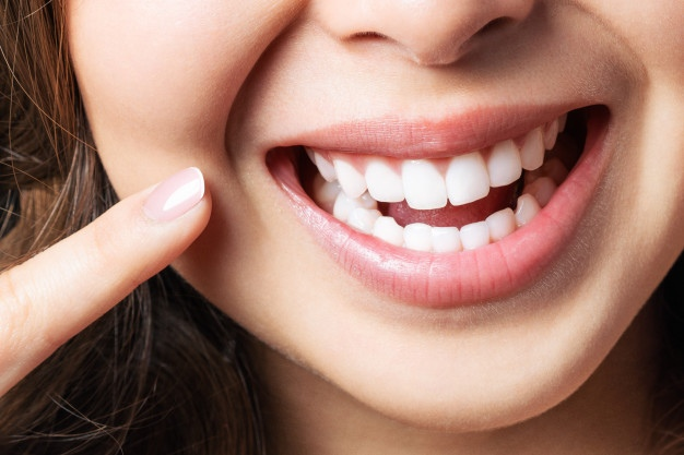 Cost of smile makeover