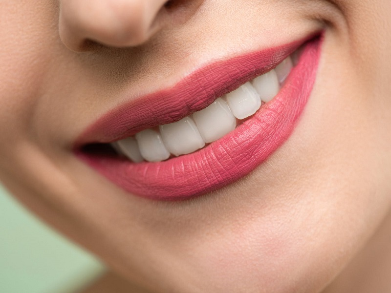 What is the Cost of Smile Makeover Surgery?